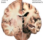 Report shows more Illinois residents diagnosed with Alzheimer's