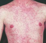 Person with measles visited locations near Lake County border
